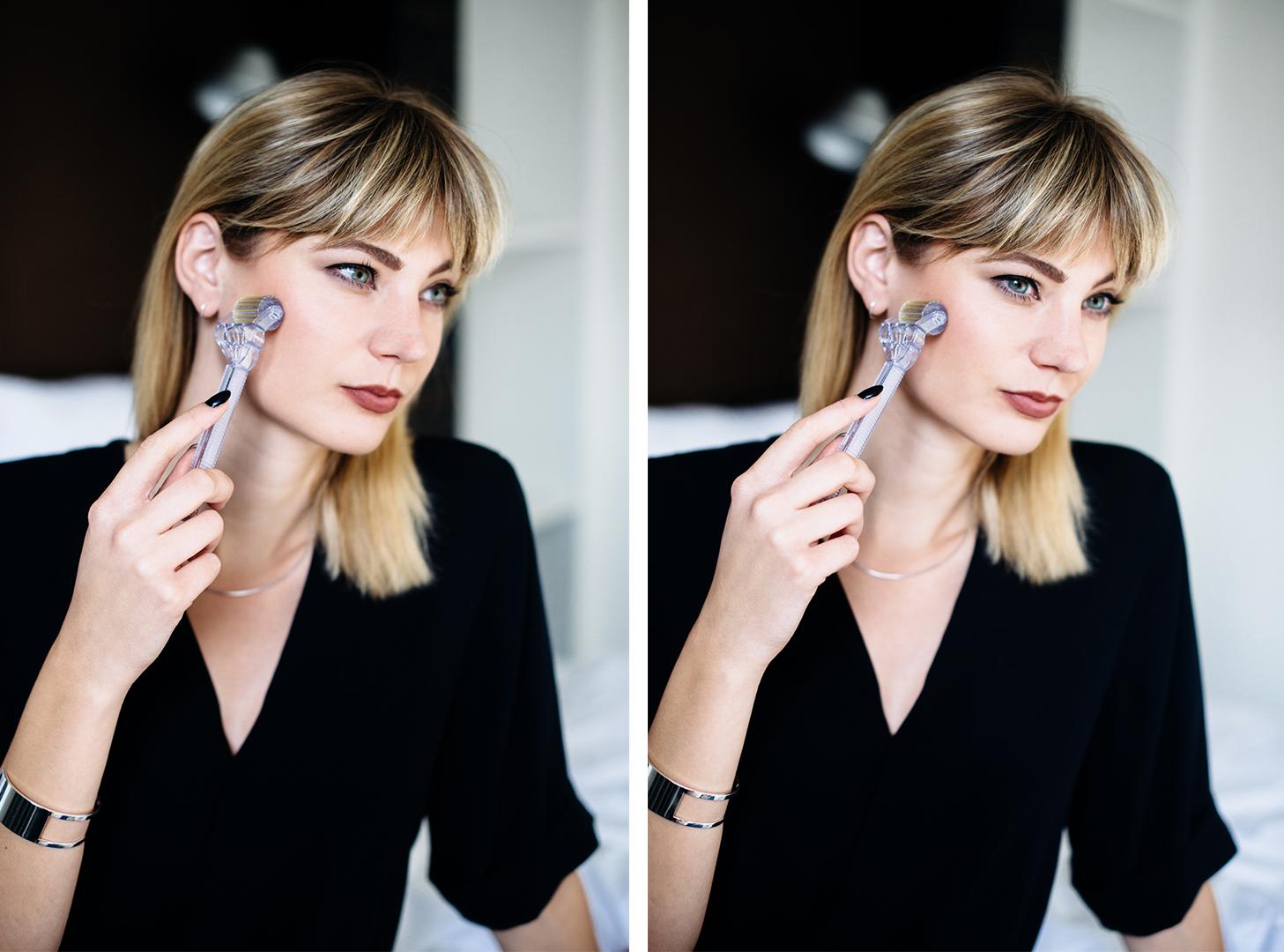 Kiamisu_Modeblog_Fashionblog_Beautyblog_WhiteLotus_White Lotus Dermaroller_Test_Erfahrung-final_3